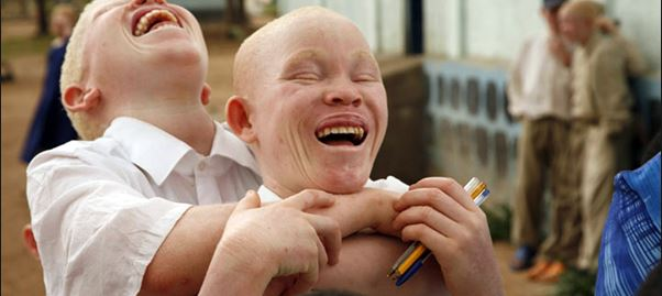 """Photo of PAP Declares War On Those Who Target People Living With Albinism For """"Ritual Purposes"""""""